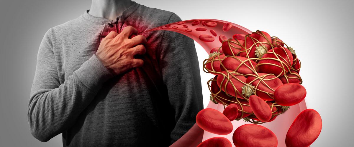 Blutgerinnsel: Wenn sich im Gefäß ein Pfropf bildet