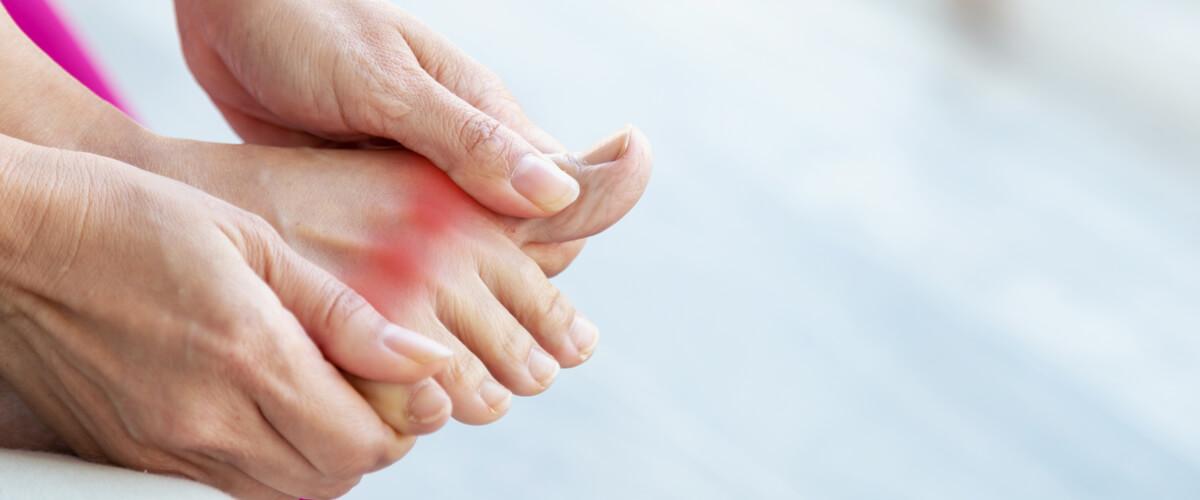 Gicht: Rheumatische Beschwerden durch erhöhten Harnsäurespiegel