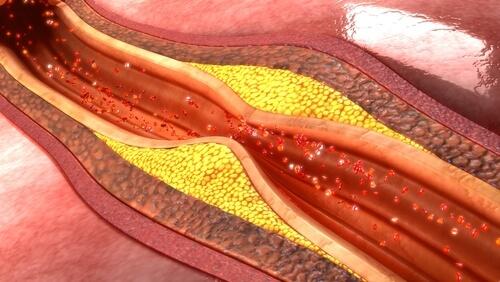 Ablagerungen in Arterie