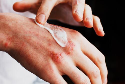 Hautpflege bei Schuppenflechte