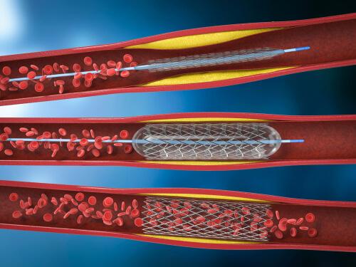 Ballonkatheter bei Arteriosklerose