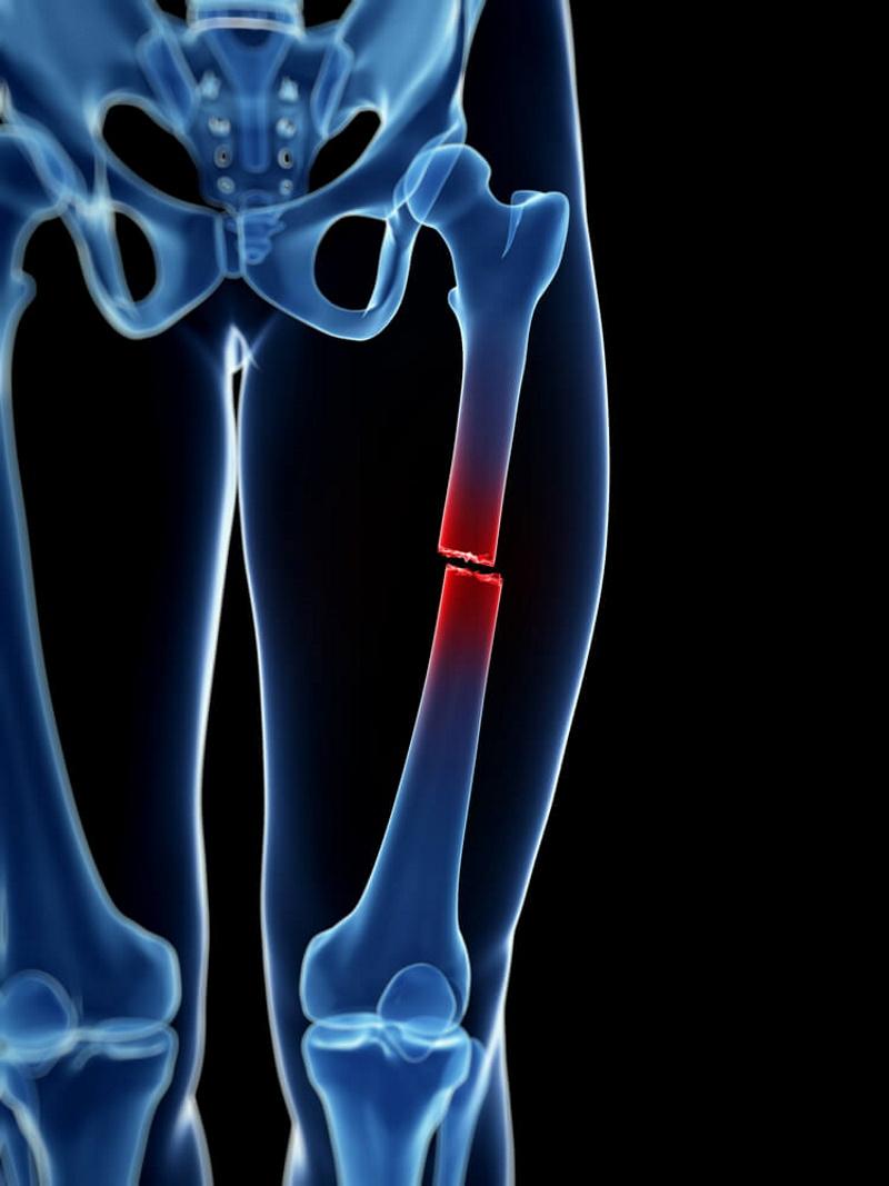 Bruch Oberschenkelknochen