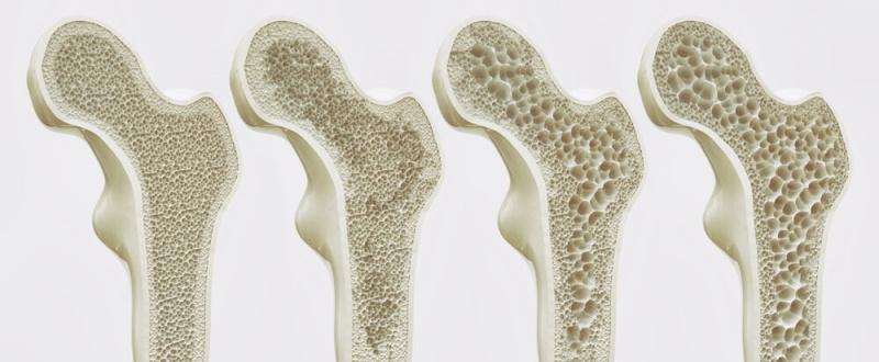 Veränderung des Knochens bei Osteoporose