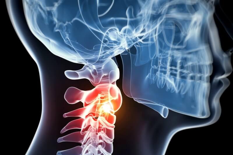 HWS - Schmerzen in der Halswirbelsäule