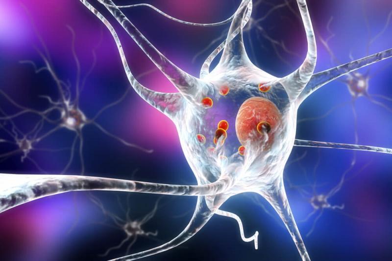 Zerstörte Nervenzelle