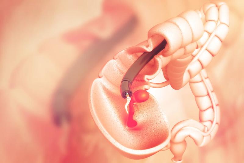 Endoskopie Polypen
