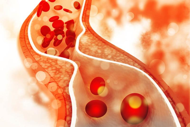 Verengtes Blutgefäß Arteriosklerose