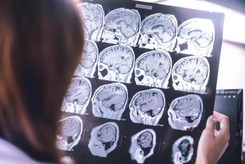 diagnostische Bilder Gehirn