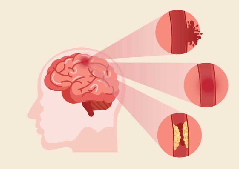 Zeichnung Gehirn Ursachen Schlaganfall