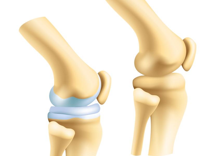 Zwei Kniegelenke im Vergleich - einmal mit gesunder Knorpelschicht, einmal ohne