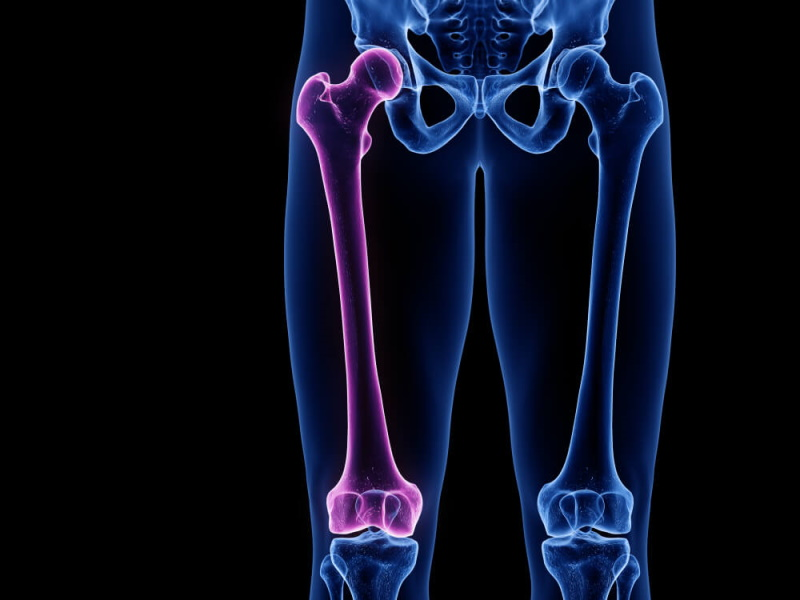 3D Oberschenkelknochen