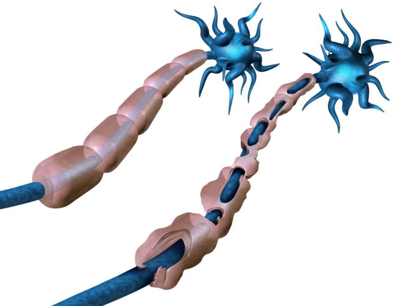 Nervenschäden bei MS