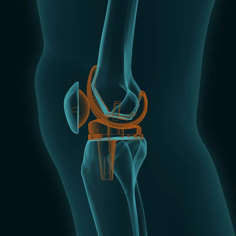 Bildliche Darstellung einer Knieprothese