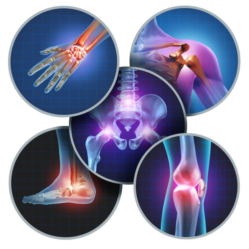 Arthritis kann in vielen Gelenken auftreten